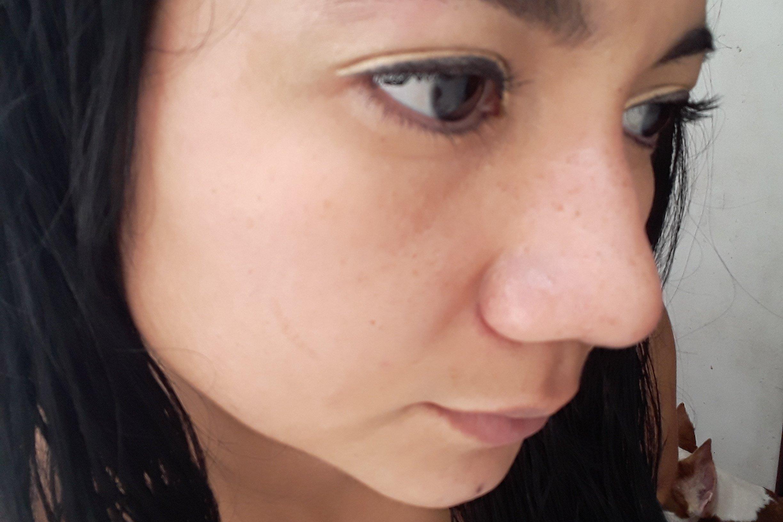 Me siento mal con mi nariz - 6119