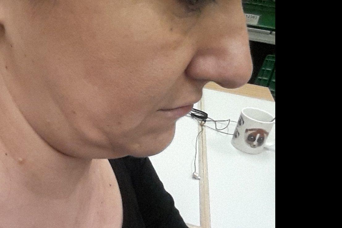 Tratamiento contorno maxilofacial - 6240