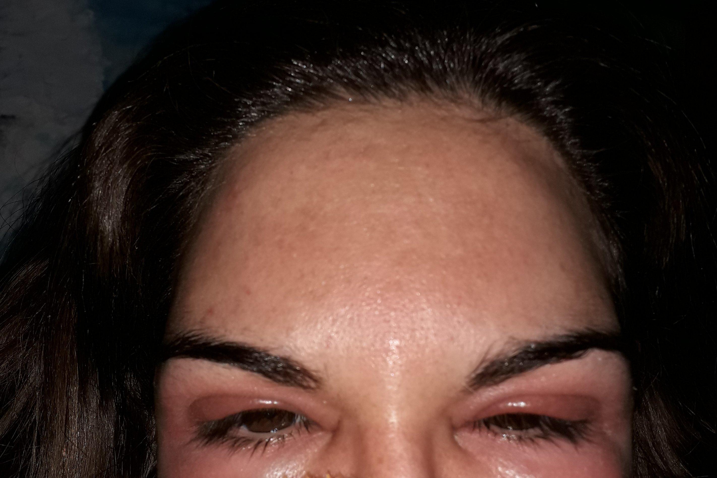He tenido una reaccion al botox - 6605