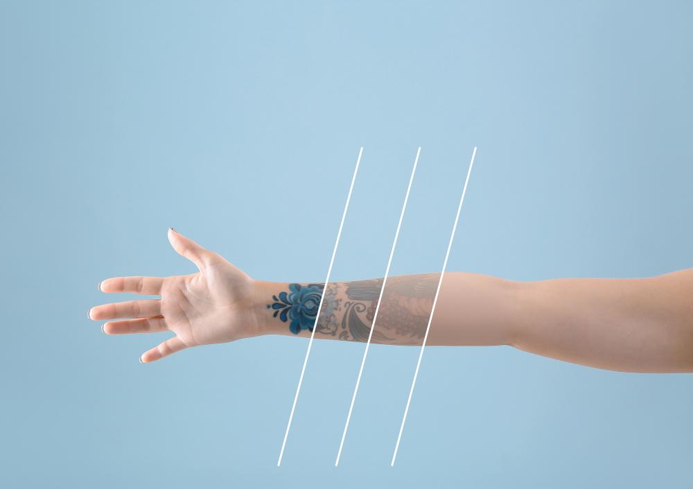 Láser tatuajes