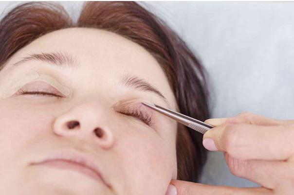 Beneficios de la blefaroplastia láser