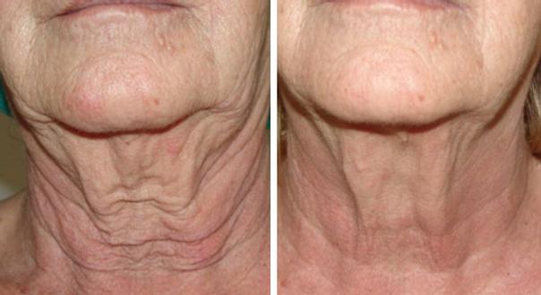 antes y después hilos tensores