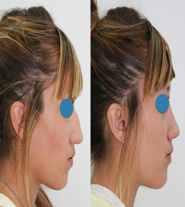 Antes y después de una rinoplastia