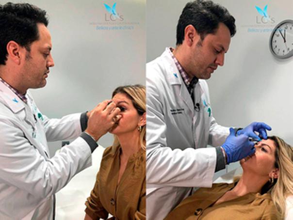 médico de rinomodelación