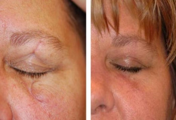 antes y después corrección de cicatrices