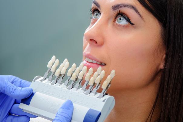 tipos carillas dentales