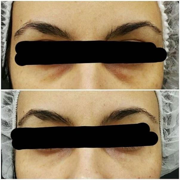 antes y después tratamiento ojeras