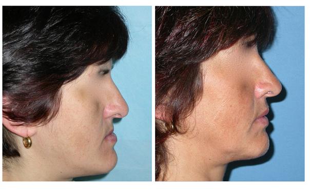 antes y después de una cirugía maxilofacial