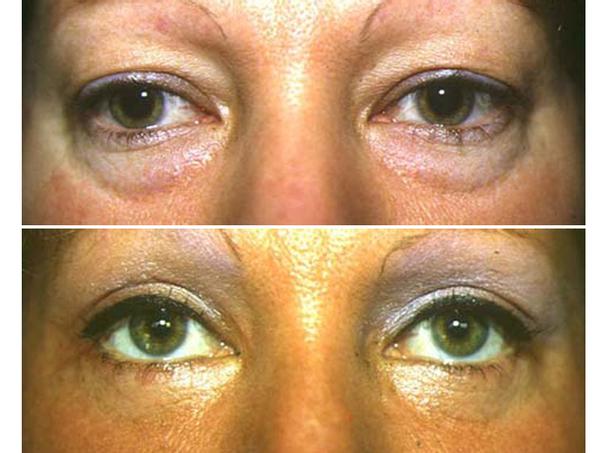 antes y después blefaroplastia sin ciurgía