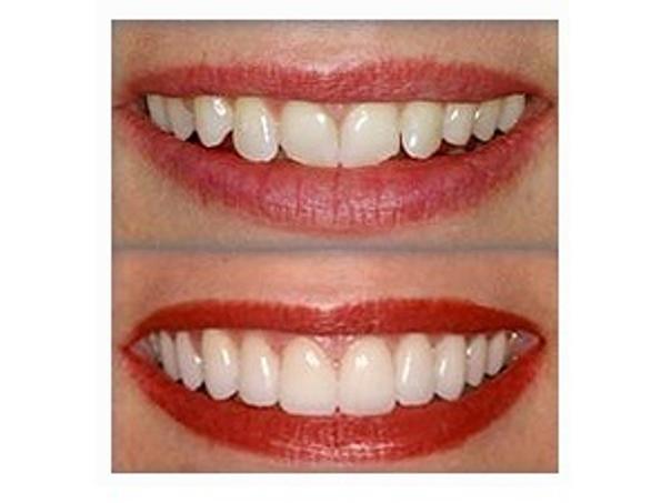 resultados ortodoncia