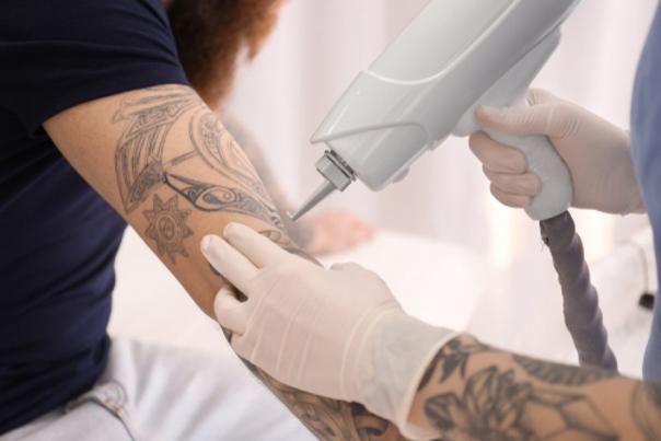 recuperación eliminación tatuajes