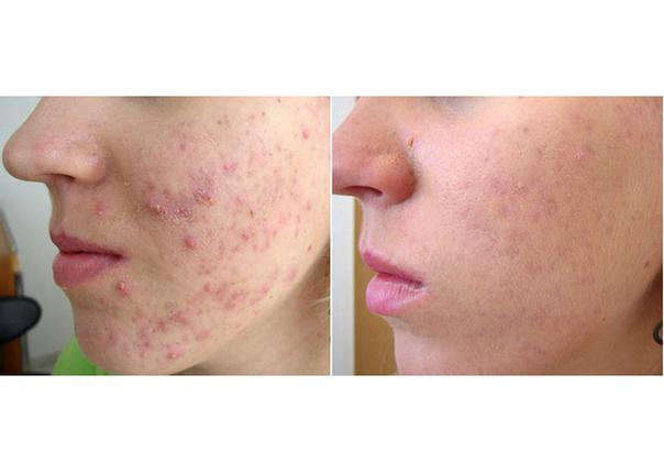 antes y después tratamiento anti acné