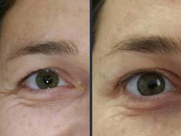 antes y después de una blefaroplastia sin cirugía