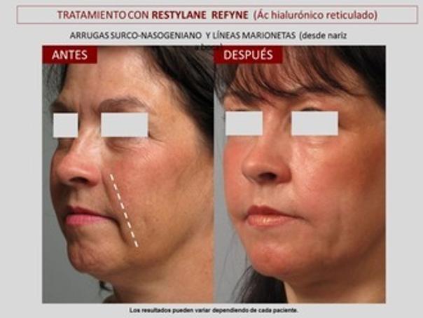 antes y después ácido hialurónico