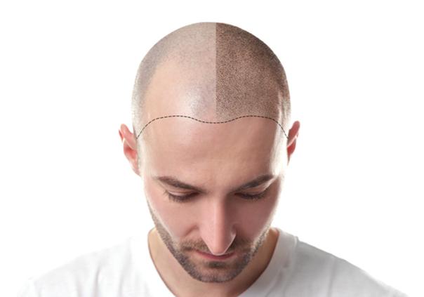 Recuperación micropigmentación