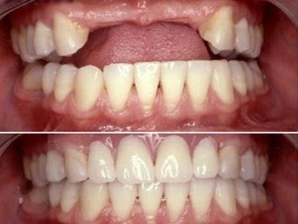 Antes y después de un procedimiento de implante dental.