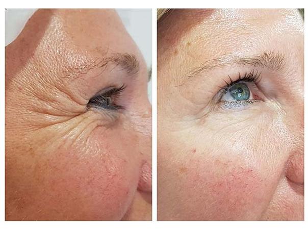 Antes y después de un tratamiento con toxina botulínica