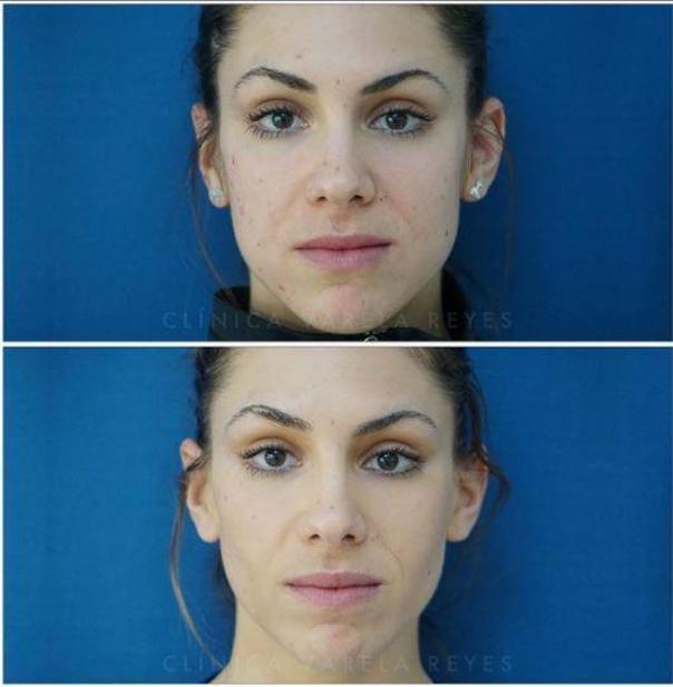 Antes y después bichectomía
