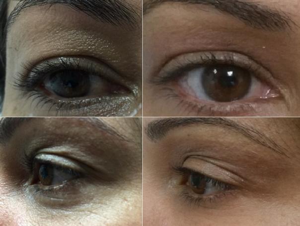 antes y después blefaroplastia sin cirugía