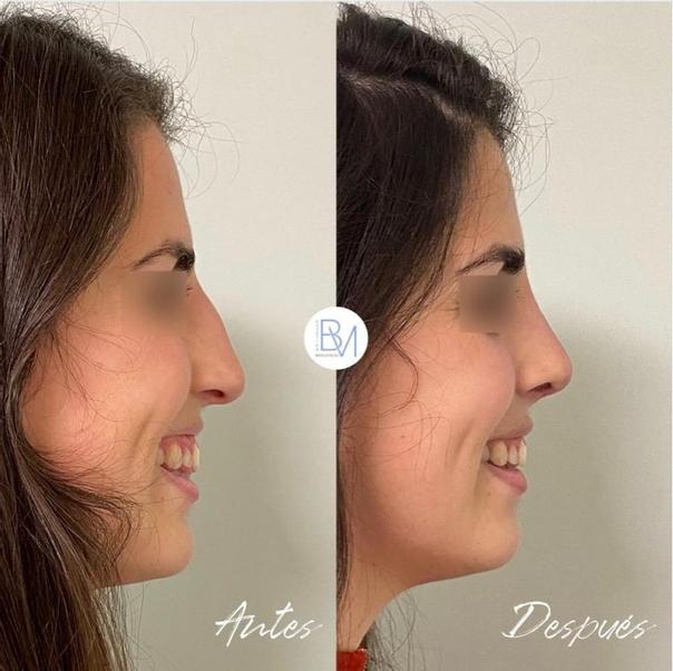 Antes y después de la rinoplastia