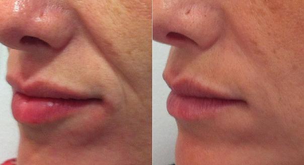Recuperación relleno facial