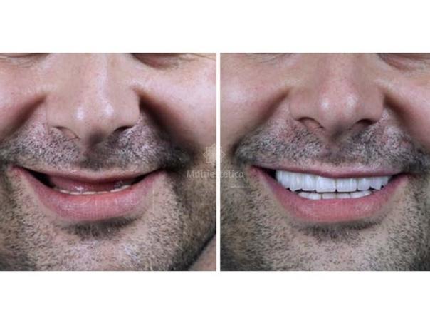 Implante dental, antes y después.