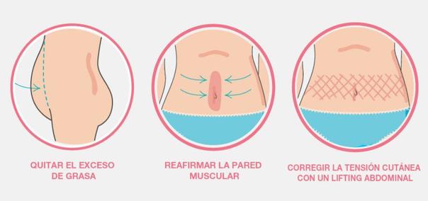 procedimiento abdominoplastia