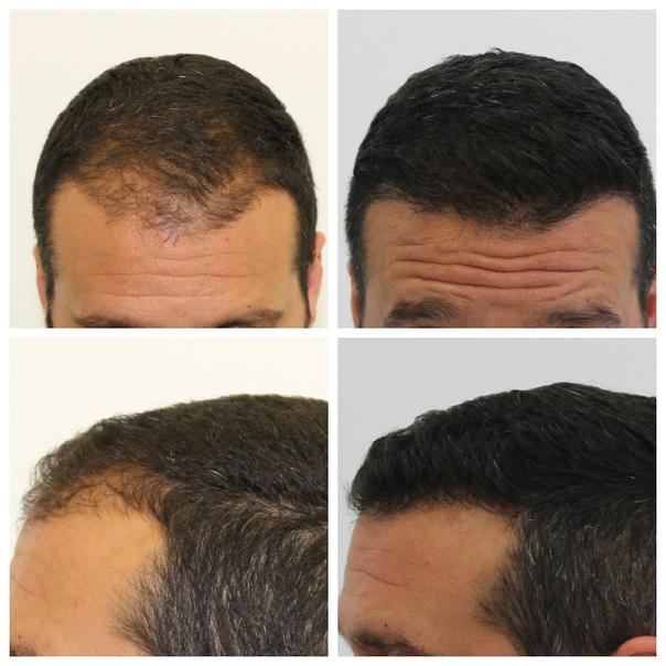 antes y después de microinjertos