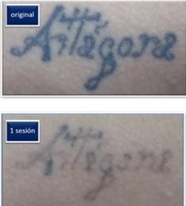 procedimiento eliminación tatuajes