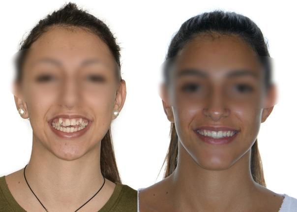 Antes y después de la cirugía maxilofacial