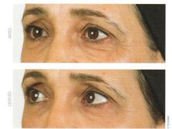Tratamiento de eliminación de ojeras con láser