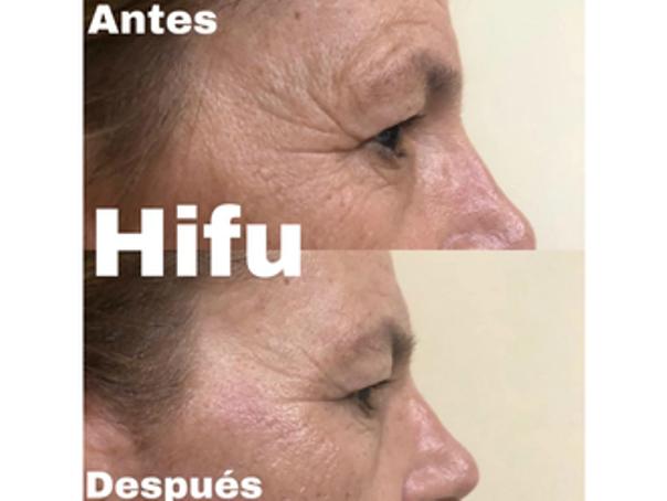 resultados hifu