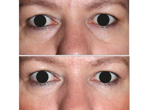 Antes y después tratamiento de ojeras