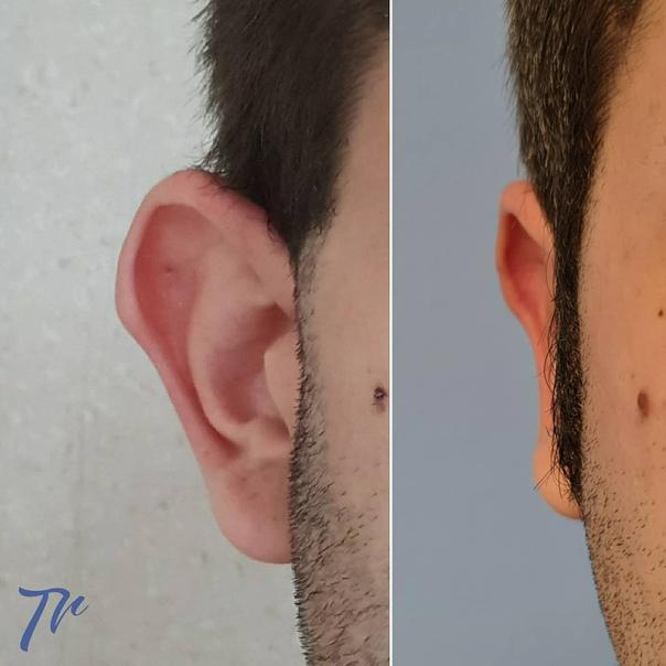resultado de una otoplastia