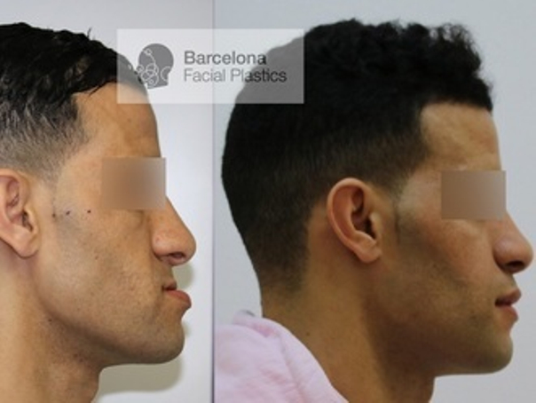 cirugía maxilofacial antes y después