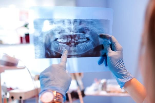 pruebas preoperatorias cirugía maxilofacial