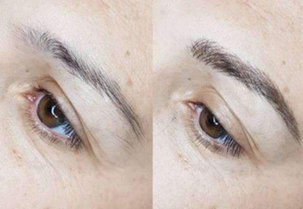 Micropigmentación en cejas