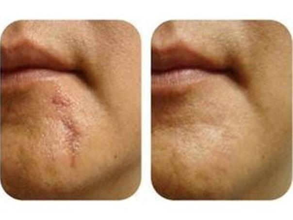 antes y después tratamiento cicatrices
