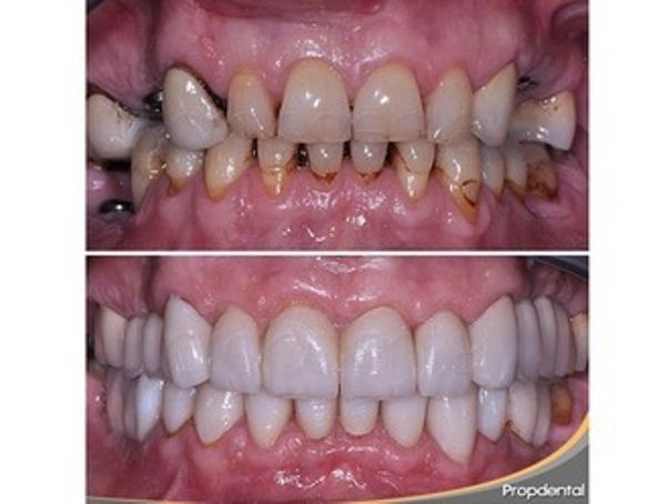 Antes y después de paciente con implantes