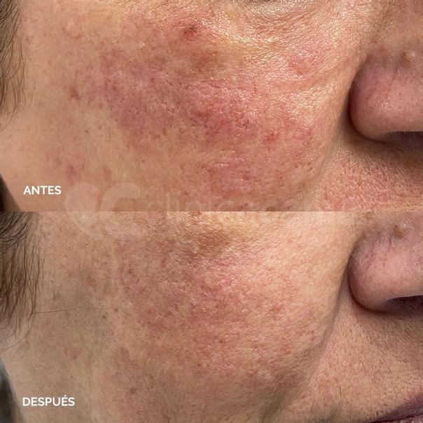 Antes y después del tratamiento de cuperosis