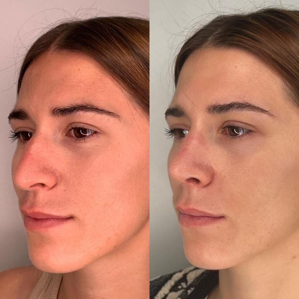 Antes y después de rinoplastia