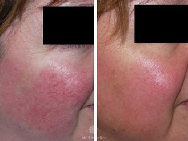 Antes y después del tratamiento de rosácea