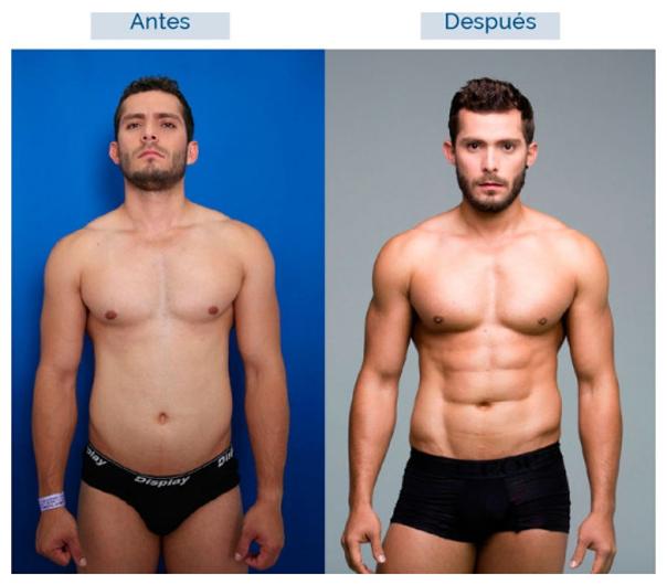antes y después lipoescultura