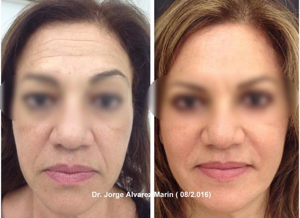 Antes y después de un aumento de pómulos