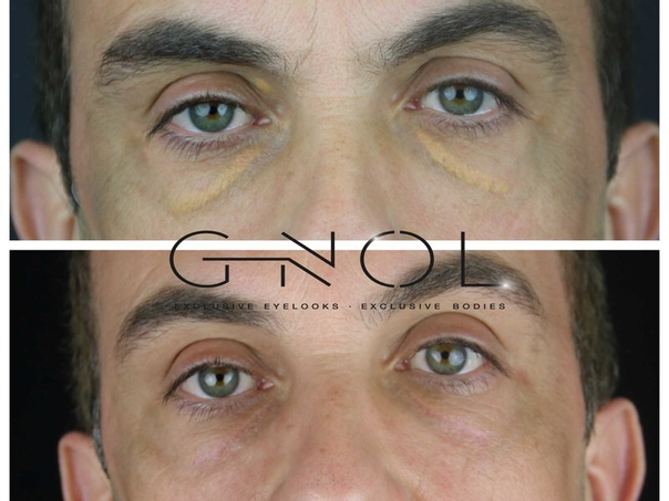 Antes y después del tratamiento de xantalesmas