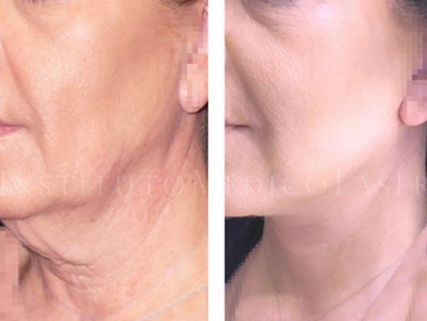 antes y después lifting