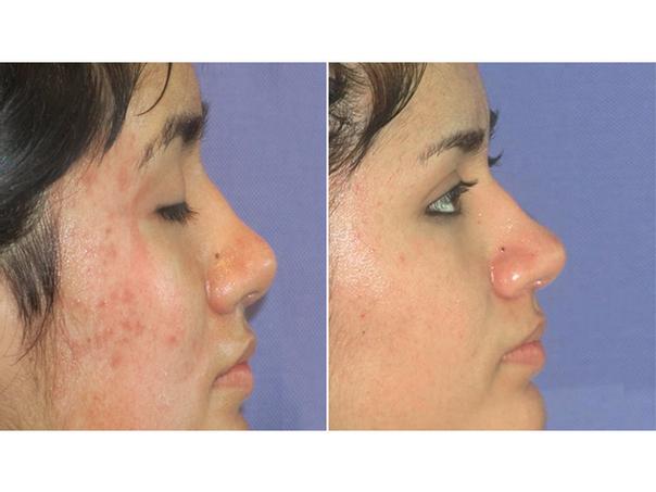 antes y después tratamiento antiacné