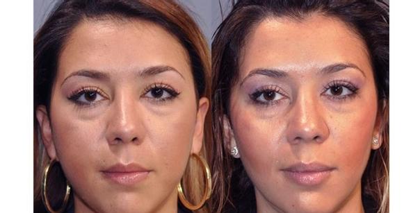 Antes y después de una bichectomía