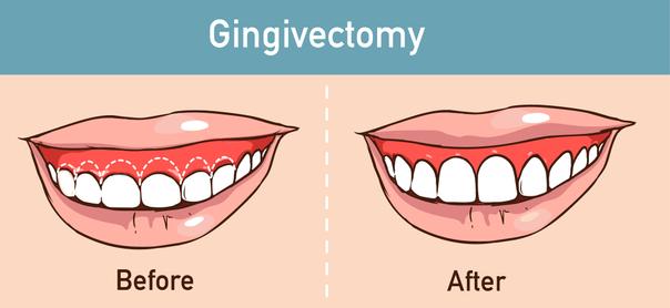 Gingivectomía
