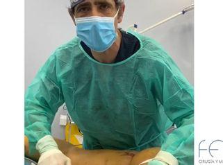 Liposucción - Clínica FEMM